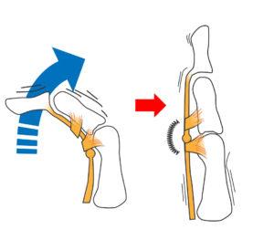 ばね指 腱鞘炎